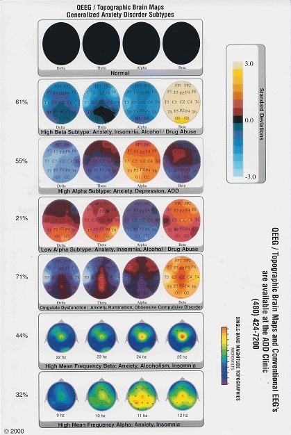QEEG Neurofeedback Anxiety Research Brain Maps