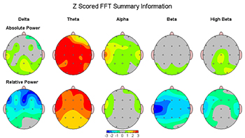 Elevated Theta Depression Subtype QEEG Brain Maps